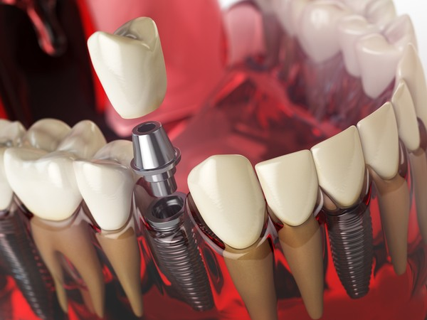 Dental Implants Hamilton