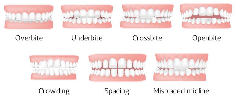 Orthodontic Treatment In Hamilton